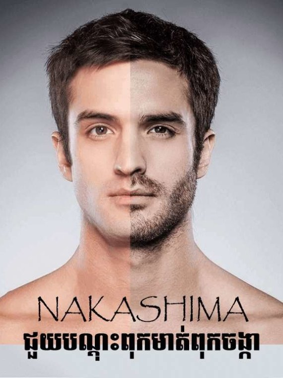 ​ NAKASHIMA